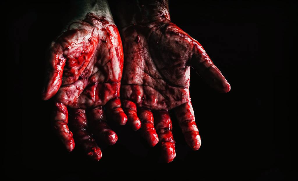 Bloody hands of a man showing his palms