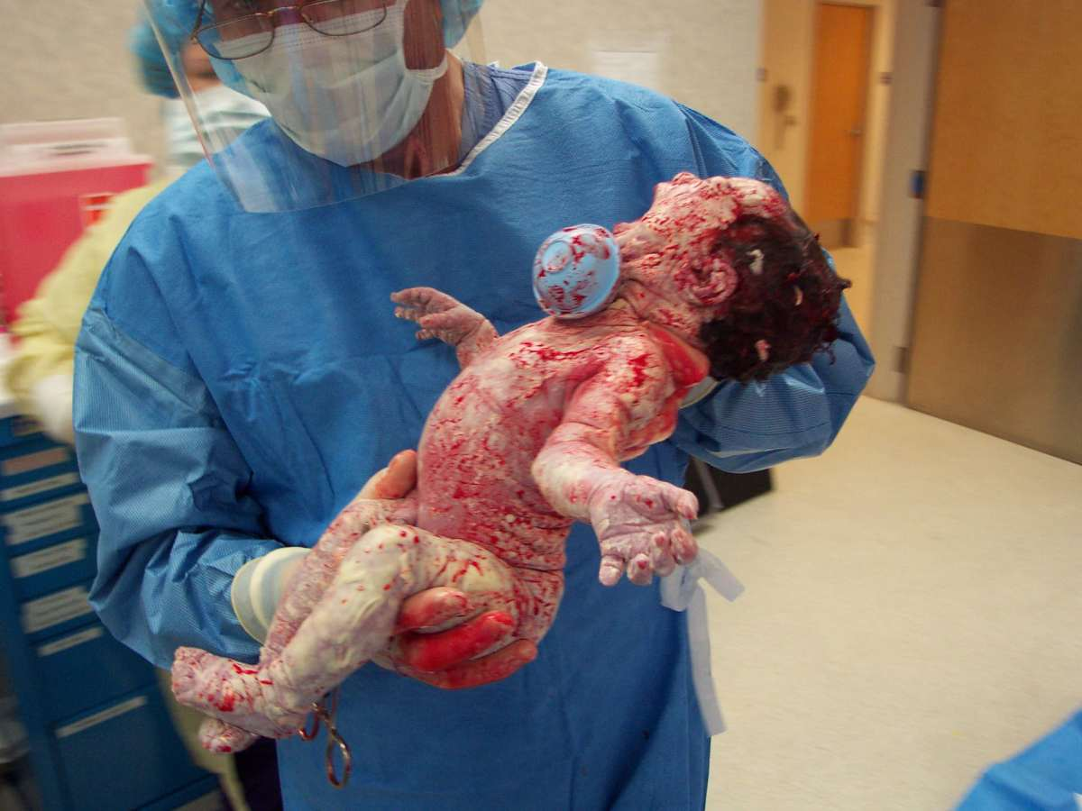 female after a c-section birth covered in blood with surgeon holding her